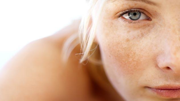 Le traitement national les taches de pigment sur la personne